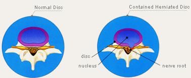 DlSC Nucleoplasty for disc compression